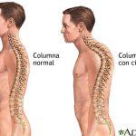 escoliosis 5