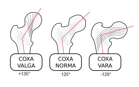 Coxa-valga-norma-vara-000
